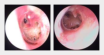 慢性中耳炎 鼓膜の状況